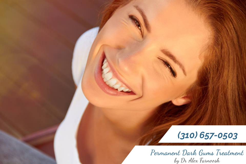You Want a Permanent Treatment for Dark Gums in Los Angeles